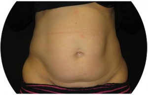Abdominoplasty before op photo
