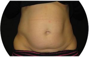 Abdominoplasty before op photo
