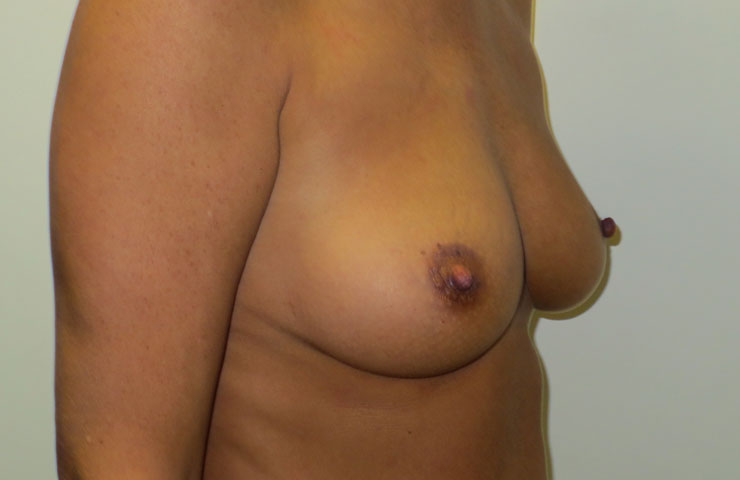 Breast uplift photo