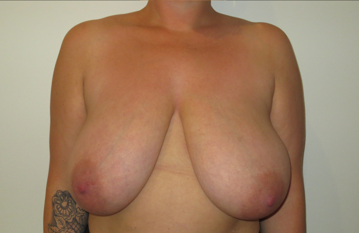 Pre-breast surgery photo
