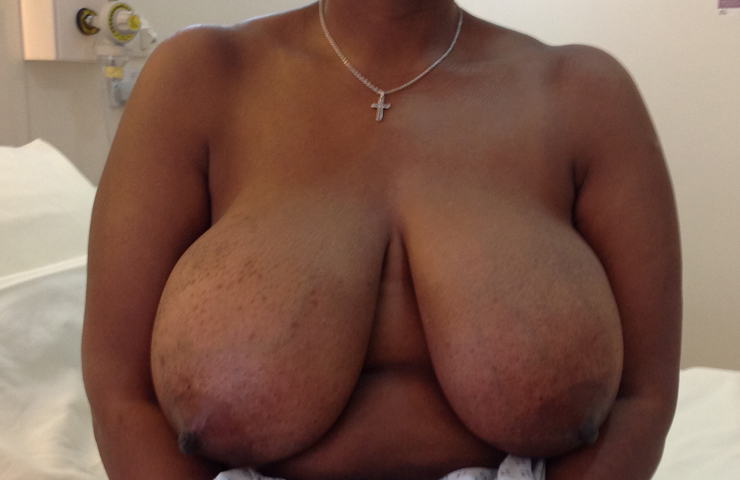 breast reduction before surgery
