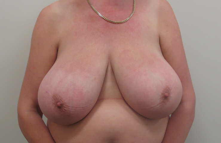Large & Asymmetric breasts before reduction surgery
