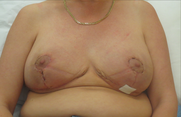 breast reduction surgery scars photo