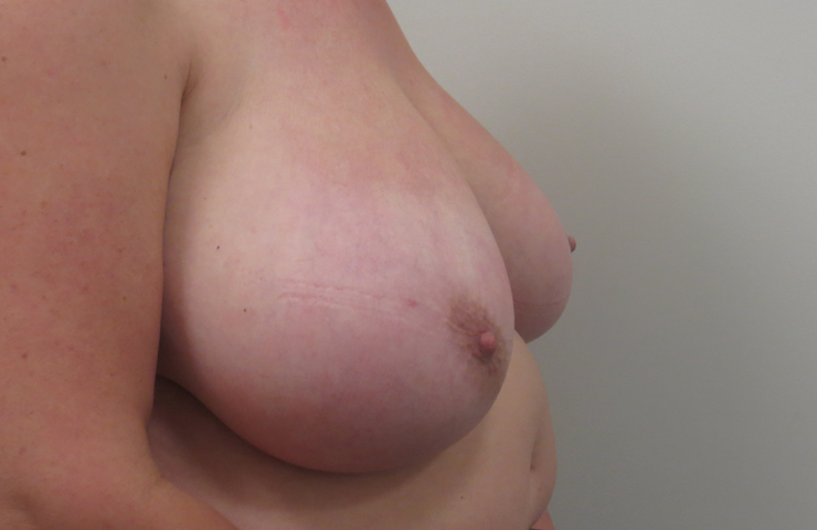 bilateral breast reduction surgery before photo