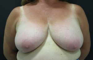 Photo of breasts pre-reduction surgery