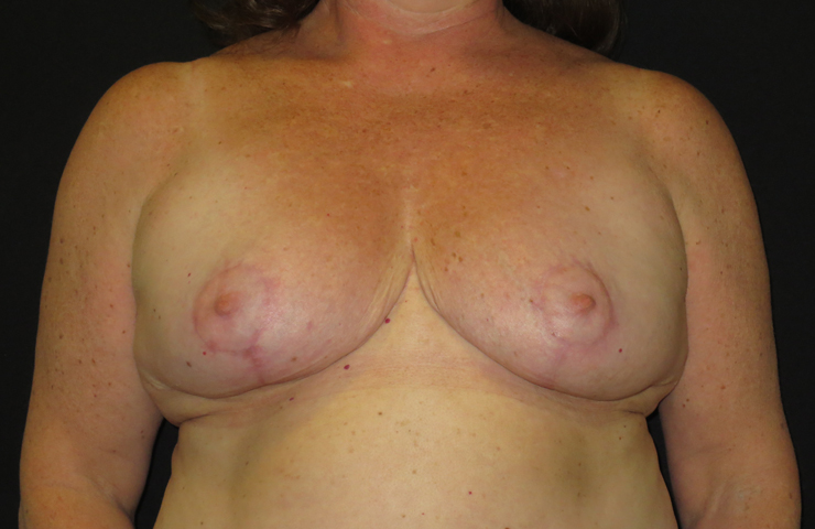 after breast reduction surgery photo