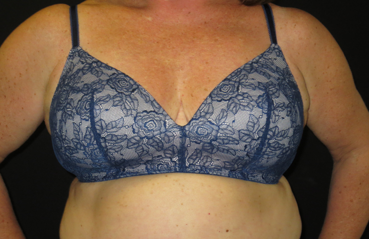 breast reduction bra