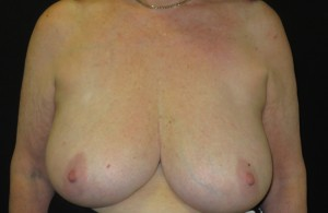 breast photo