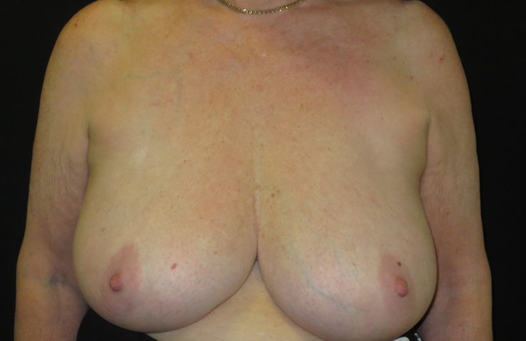 breast photo