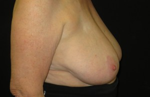 Res breast surgery photo