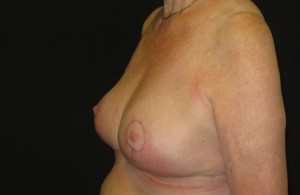 After breast surgery photo
