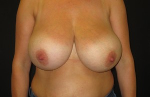Bilateral Breast Reduction surgery before