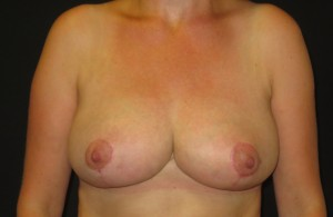 Breast reduction photo after surgery