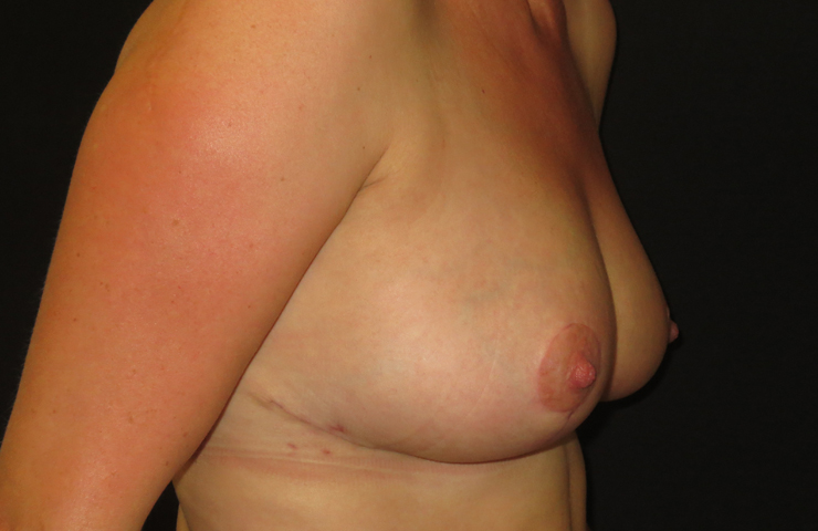 Breast reduction after surgery photo