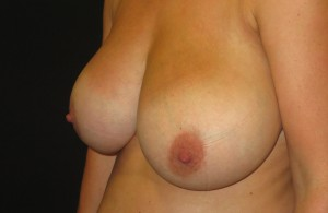 Breast reduction photo before op