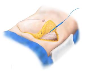 Breast Reconstruction - Abdominal Harvest