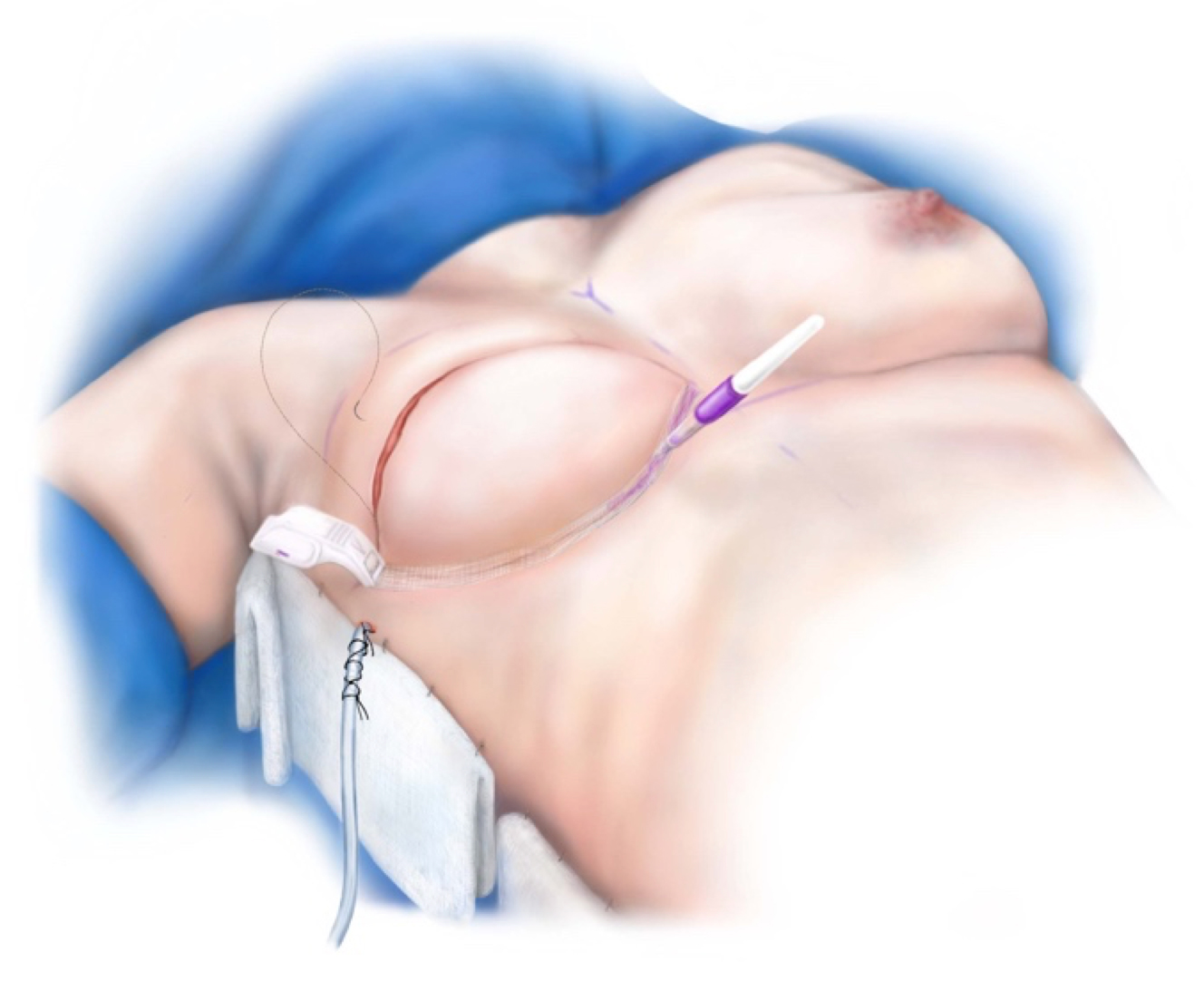 Breast Reconstruction - Closed and Dressed
