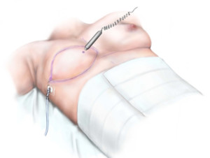 Breast Reconstruction - Completed Surgery