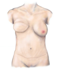 Breast Reconstruction - Results