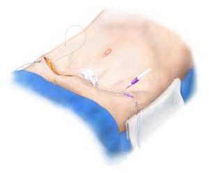 Breast Reconstruction - Tummy Tuck