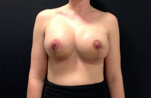 Mastopexy-After-01-740x480