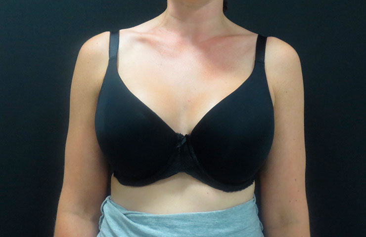 Mastopexy-After-02-740x480