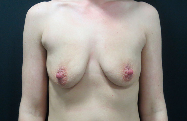 Mastopexy-Before-01-740x480