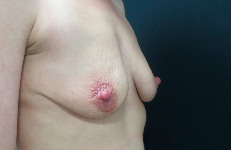 Mastopexy-Before-02-740x480