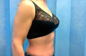Uplift+Abdominoplasty-After-01-740x480