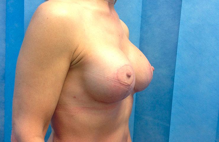 Uplift+Abdominoplasty-After-02-740x480