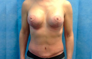 Uplift+Abdominoplasty-After-03-740x480
