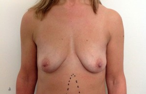 Uplift+Abdominoplasty-Before-01-740x480