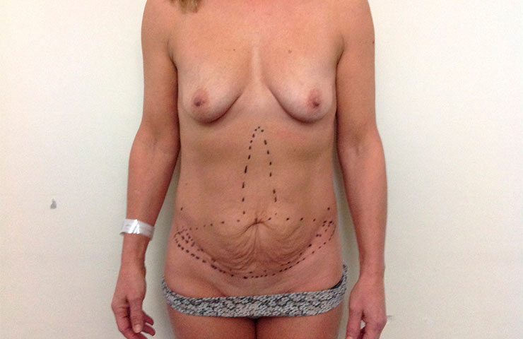 Uplift+Abdominoplasty-Before-02-740x480