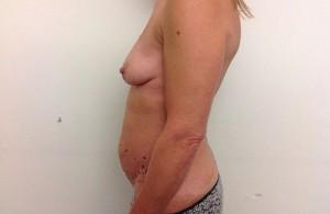 Uplift+Abdominoplasty-Before-03-740x480
